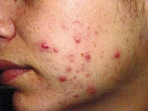 Treating Pcos Symptoms Acne Treatments Jacksonville